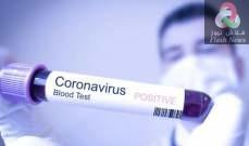 صورة تسجيل 5871 إصابة جديدة بفيروس كورونا و 146 وفاة في روسيا